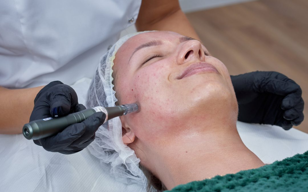 Jak kosmetolog dba o skórę?