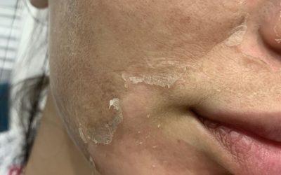 Deep Phyto peeling – czym jest i jak wygląda zabieg?