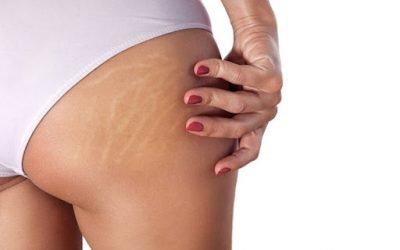 Termoaktywny zabieg na cellulit- czym jest? Jak działa?